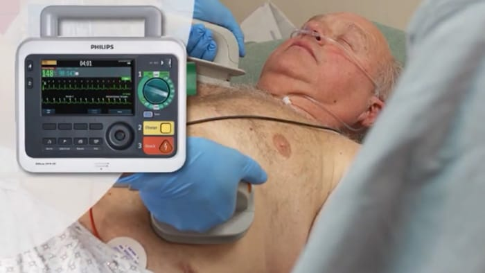 Synchronized Cardioversion with the Efficia DFM100 monitor/defibrillator