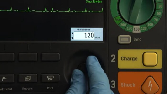 Overview of the Efficia DFM100 monitor/defibrillator